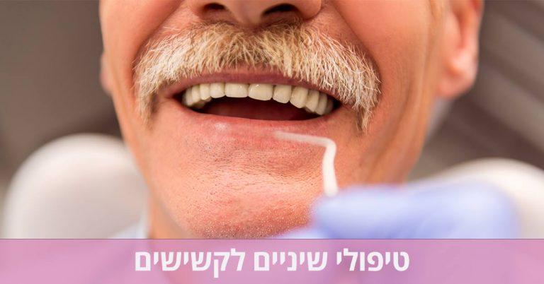 טיפולי שיניים לקשישים