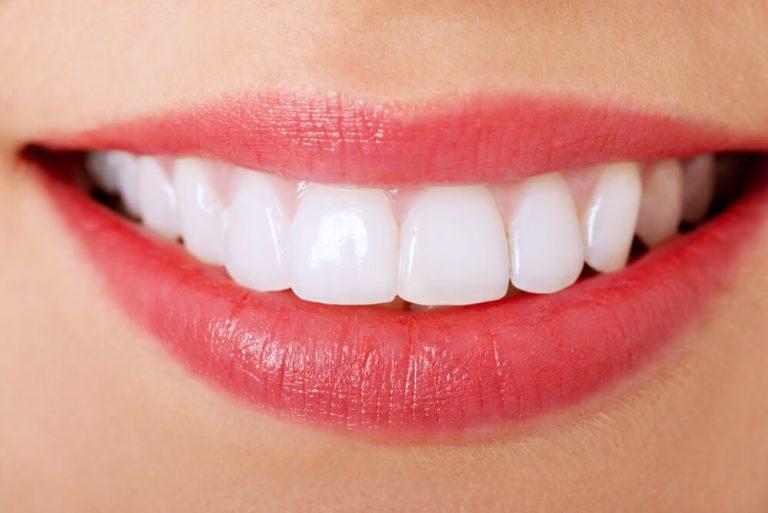 השתלת שיניים בלסת התחתונה